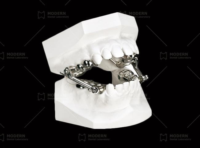 Herbst Appliance Cast Silver Splint Type Modern Dental Lab