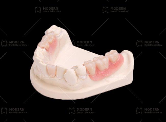 Resure Flexible Partial Denture Modern Dental Lab