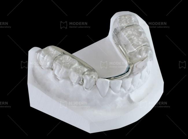 Clear Relief Modern Dental Lab