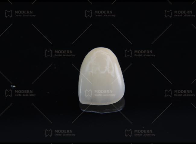 E Max 174 Modern Dental Lab